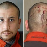 Medical Records Reveal George Zimmerman Didn't Suffer Head Trauma