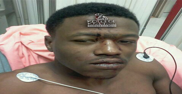 DCYoungFly Talks Being Stabbed