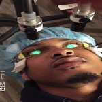 August Alsina Undergoes Eye Surgery To Correct Blindness