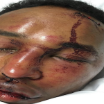 Toronto Rapper Mo-G Brutally Beaten After Drake Ghostwriting Allegations