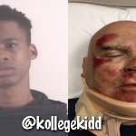 Old Man Reacts To Tay-K Giving Him Brain Injury