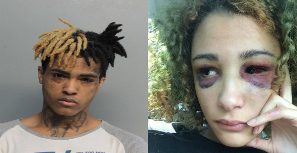XXXTentacion To Begin Trial For Beating Pregnant